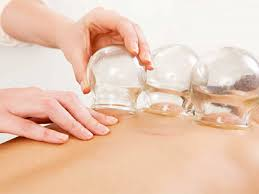 Cupping Therapy Rialto Riverside